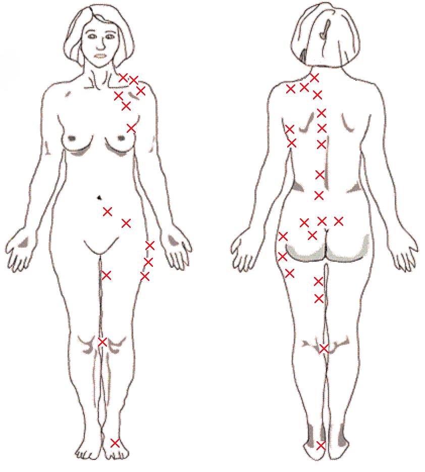 gravid smerter i højre side af maven